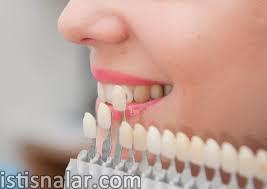 estetik diş hekimliğine, implant, lazerle diş estetiği