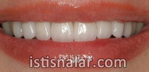 zirkonyum diş fiyatları, zirkonyum kaplama, zirkonyum porselen