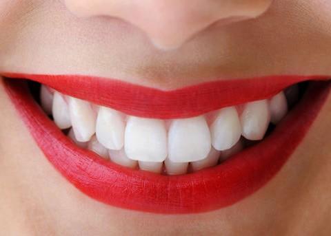 Estetik Diş Hekimliği Nedir ve Nelerle Uğraşır?