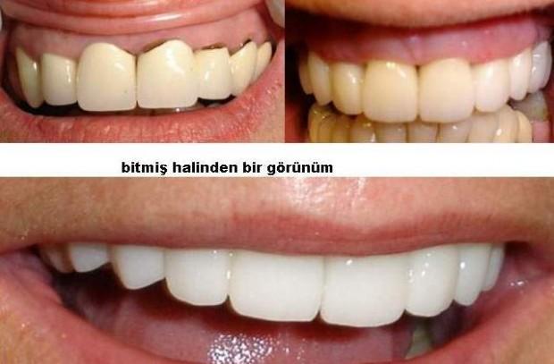 Zirkonyum diş fiyatları neye göre belirlenir?