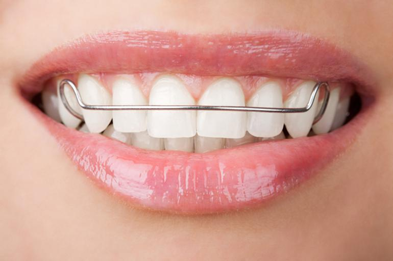 Diş Teli Fiyatı Çeşitlerine Göre Farklılık Gösterir mi?