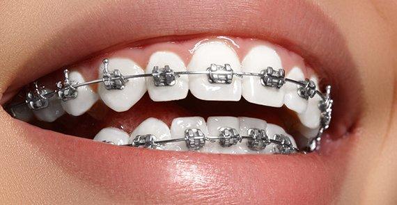 Şeffaf Diş Teli Mi yoksa Metal Diş Teli Mi?