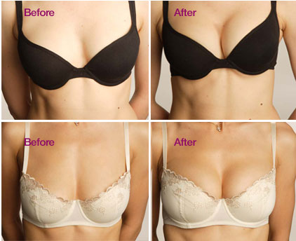 Göğüs Estetiği Ameliyat Süresi