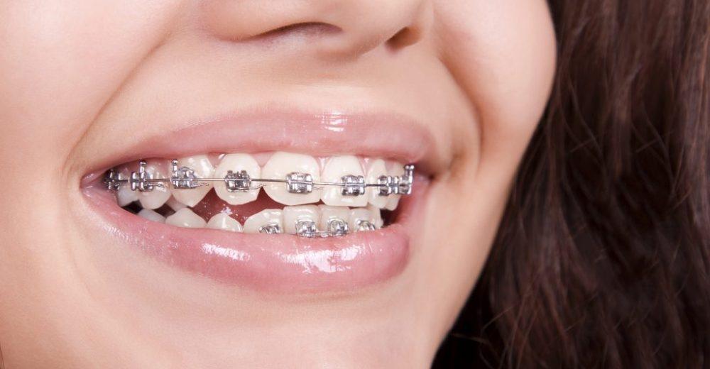 Uygun Fiyata Diş Teli Nasıl Takılır?