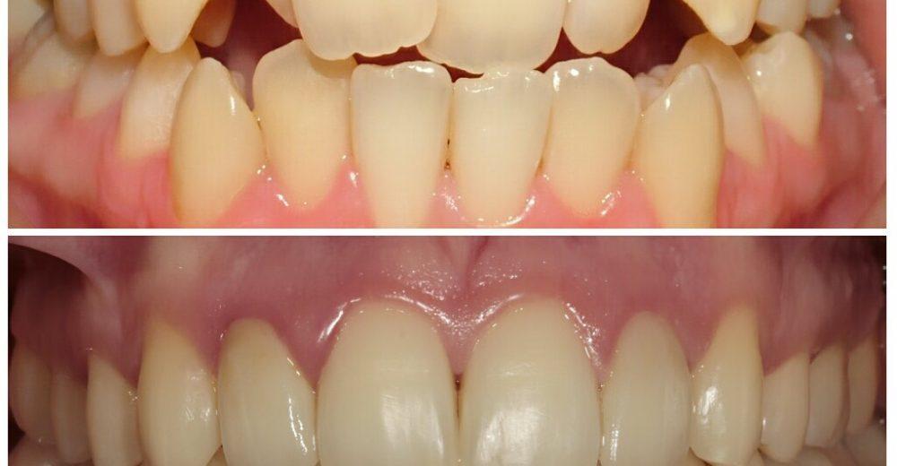 2018 Ortodonti Tedavisi Fiyatları