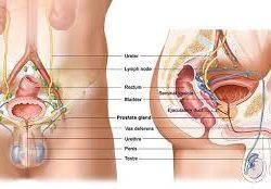prostat kanseri belirtileri, prostat kanseri tedavisi, prostat kanseri ameliyatı