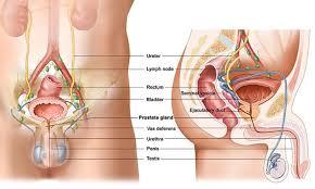Prostat kanseri ameliyatı neden yapılır ?