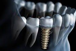 implant tedavisi, implant fiyatları, implant tedavi fiyatları 2018