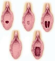 Vajina Estetiği Nedir?
