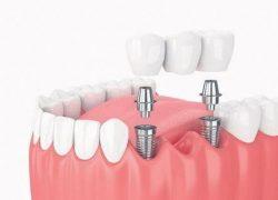 imlant yaptırma, implant nasıl yapılır, diş implantı