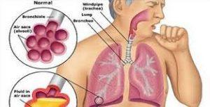 hava keseciği yapısı, akciğer hava kesecikleri