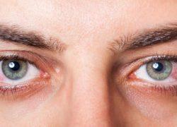 Göz tansiyonu, göz , tansiyon