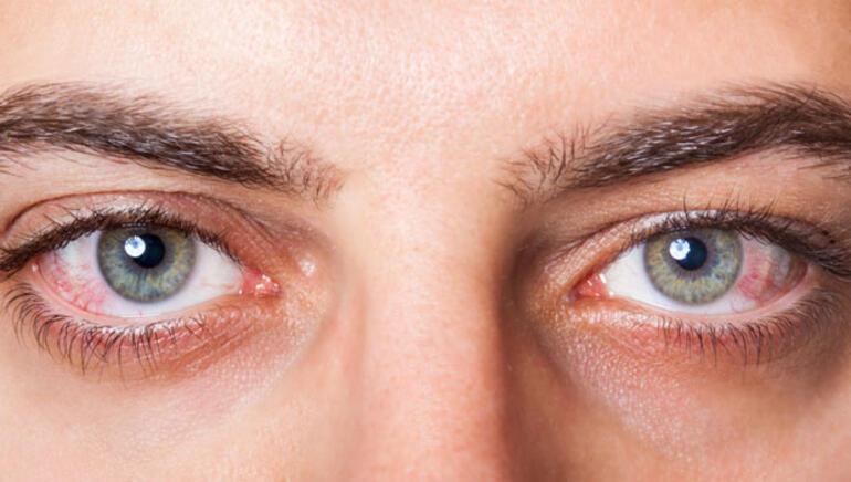 Göz Tansiyonu Bitkisel Tedavi