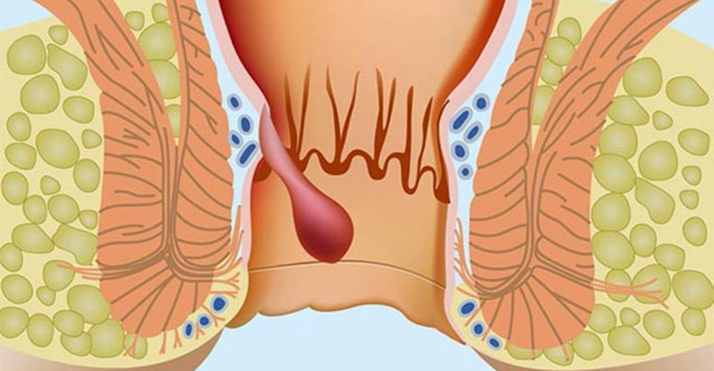 Tromboze Hemoroid Tedavisi