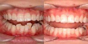 diş plağı, diş plağı oluşumu, diş plağı nedir
