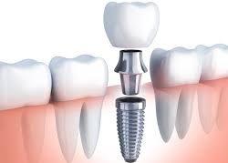 implant tedavisi, çocuklara implant yapımı, çocukluk çağında implant tedavisi