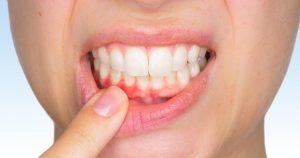 diş eti rahatsızlığı, diş eti rahatsızlığı nasıl geçer, diş eti iyileşmesi