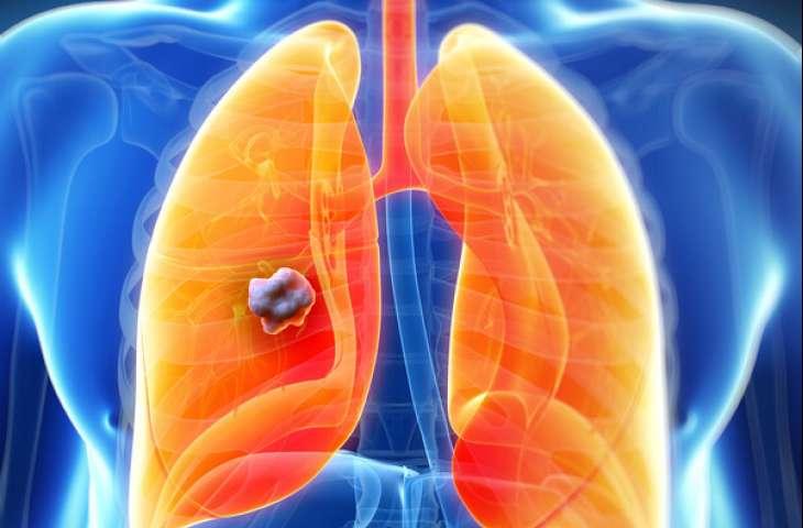 Akciğer Nodülleri Hakkında Bilinmesi Gerekenler