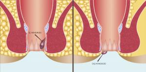 hemoroid ne demek, hemoroid çeşitleri, iç hemoroid, dış hemoroid